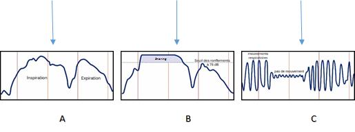 Graph 4 EN